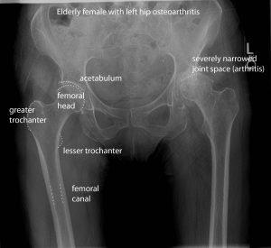osteo arthritis of the hip