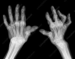 rheumatoid in hands